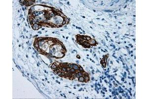 Immunohistochemistry (IHC) image for anti-MCL-1 antibody (Induced Myeloid Leukemia Cell Differentiation Protein Mcl-1) (ABIN4333175)