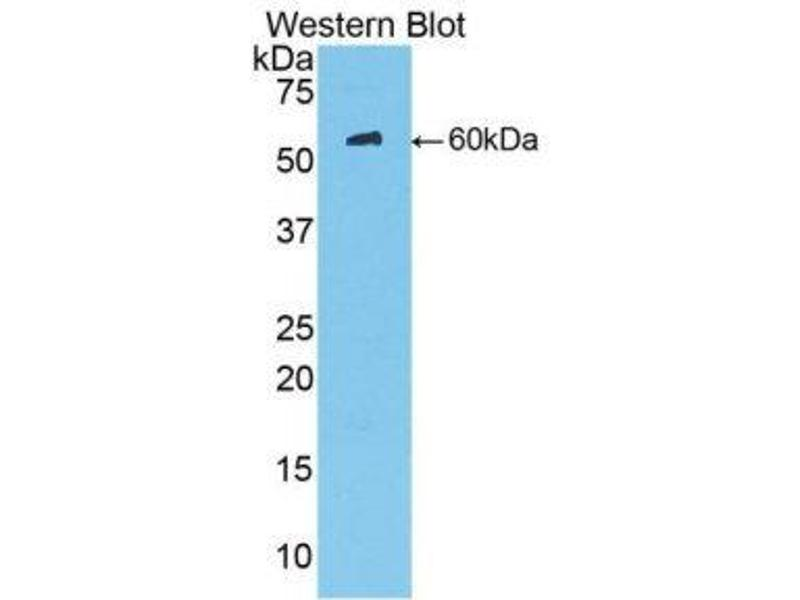 Western Blotting (WB) image for anti-Mannose-Binding Lectin (Protein C) 2, Soluble (MBL2) (AA 130-248) antibody (ABIN1174673)