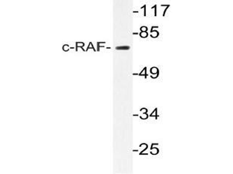 Western Blotting (WB) image for anti-RAF1 antibody (V-Raf-1 Murine Leukemia Viral Oncogene Homolog 1) (ABIN498893)