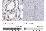 Immunohistochemistry (Paraffin-embedded Sections) (IHC (p)) image for anti-DEAH (Asp-Glu-Ala-His) Box Polypeptide 16 (DHX16) antibody (ABIN4305178)