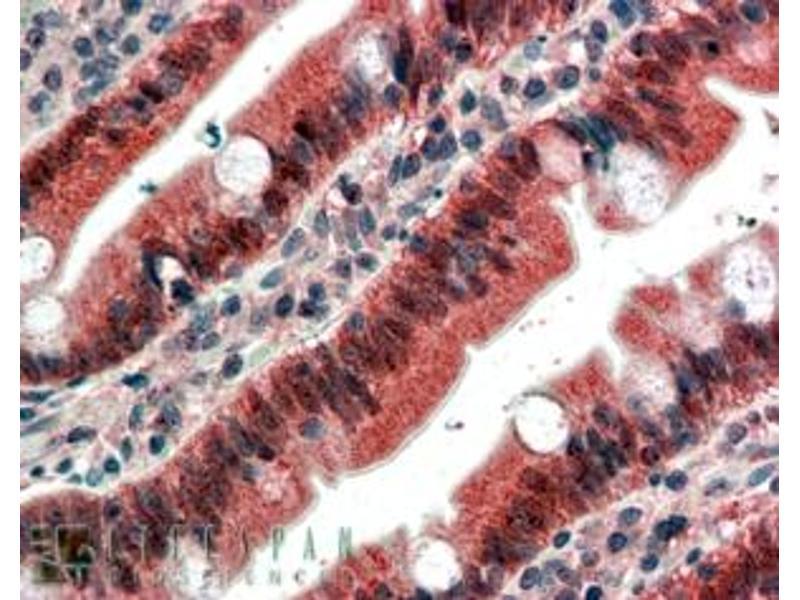 Immunohistochemistry (IHC) image for anti-FGFR1 antibody (Fibroblast Growth Factor Receptor 1) (ABIN2435798)