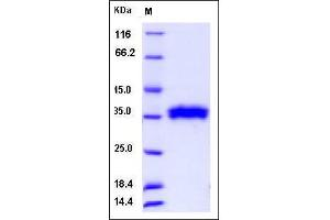 Image no. 1 for Ribonuclease T2 (RNASET2) (AA 1-256) protein (His tag) (ABIN2005760)