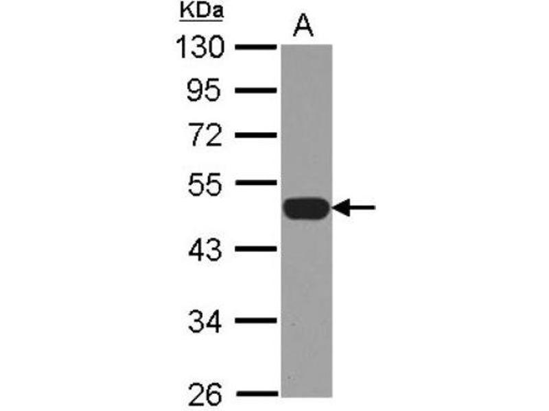 Western Blotting (WB) image for anti-NCF1 antibody (Neutrophil Cytosol Factor 1) (Center) (ABIN4338255)
