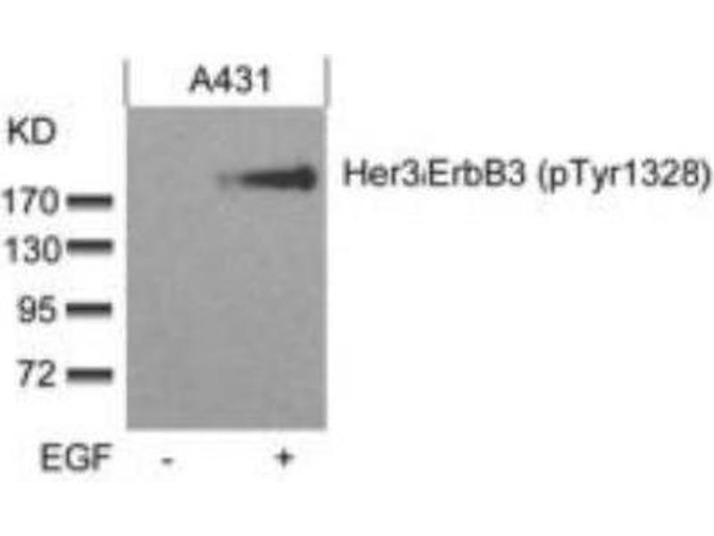 Western Blotting (WB) image for anti-ERBB3 Antikörper (V-Erb-B2 Erythroblastic Leukemia Viral Oncogene Homolog 3 (Avian)) (pTyr1328) (ABIN316283)