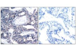 image for anti-MAP2K2 antibody (Mitogen-Activated Protein Kinase Kinase 2) (pThr394) (ABIN196622)