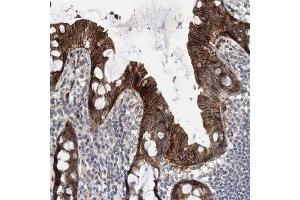 Immunohistochemistry (Paraffin-embedded Sections) (IHC (p)) image for anti-Non-SMC Element 4 Homolog A (S. Cerevisiae) (NSMCE4A) antibody (ABIN4340769)