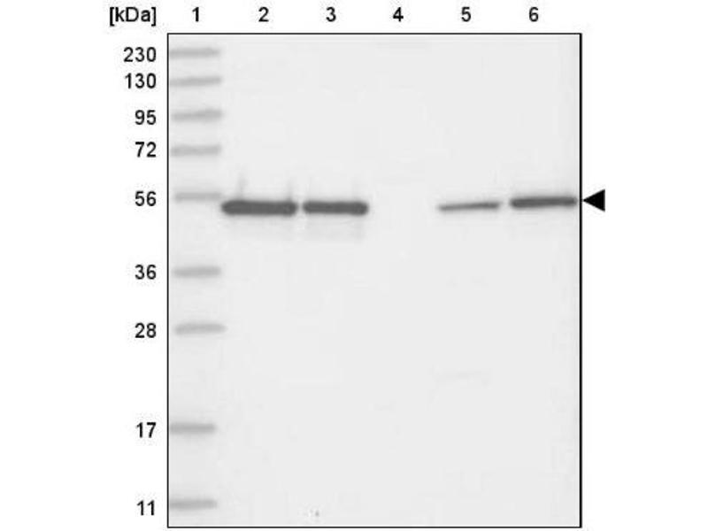Western Blotting (WB) image for anti-RNA Binding Motif Protein 17 (RBM17) 抗体 (ABIN4349585)