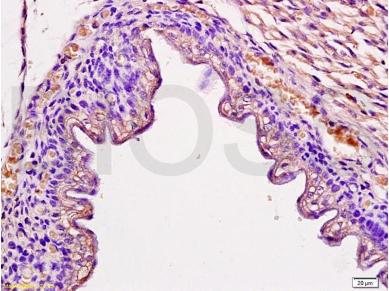 Immunohistochemistry (IHC) image for anti-Occludin Antikörper (OCLN) (AA 480-520) (ABIN687337)