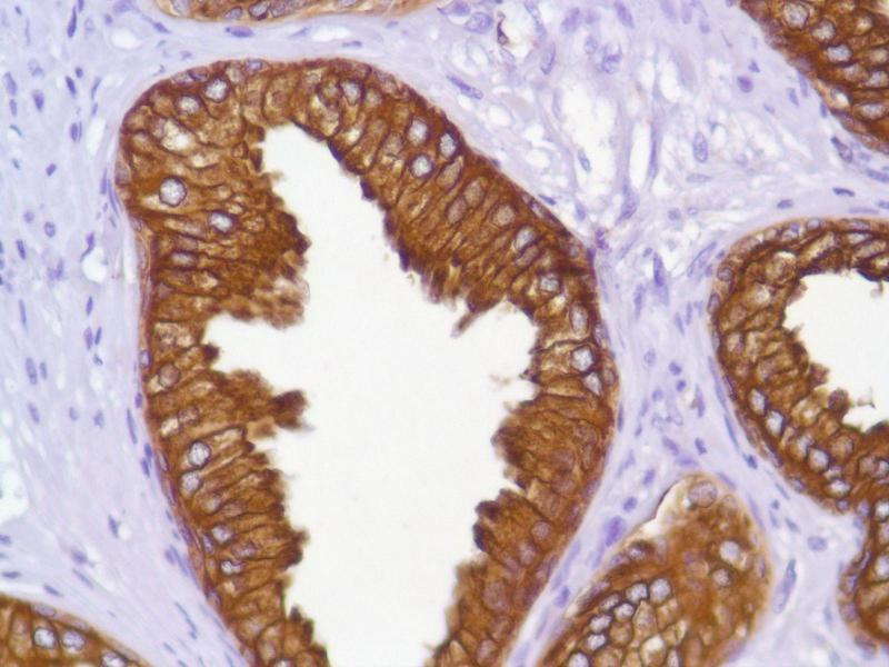 Immunohistochemistry (IHC) image for anti-KRT18 antibody (Keratin 18) (C-Term) (ABIN1687808)