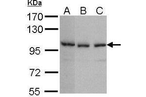 Image no. 2 for anti-Tankyrase, TRF1-Interacting Ankyrin-Related ADP-Ribose Polymerase 2 (TNKS2) (N-Term) antibody (ABIN2855877)
