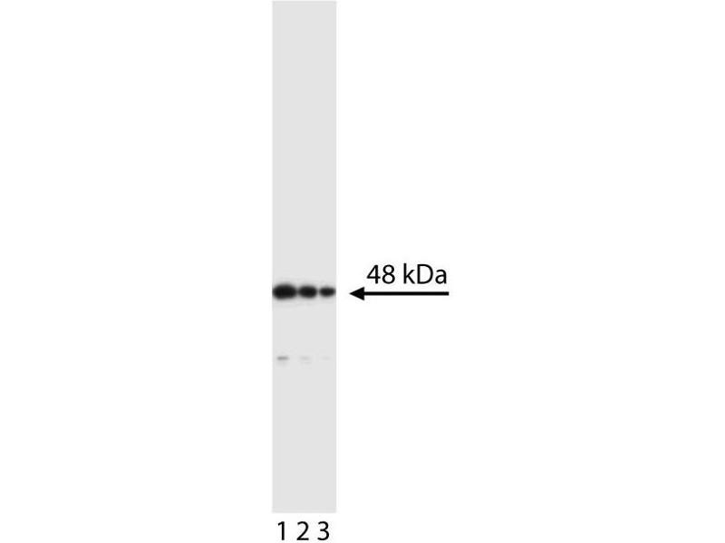 Western Blotting (WB) image for anti-Caspase 2, Apoptosis-Related Cysteine Peptidase (CASP2) (Short Isoform) antibody (ABIN967316)