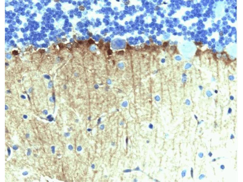 Immunohistochemistry (Paraffin-embedded Sections) (IHC (p)) image for anti-Enabled Homolog (Drosophila) (ENAH) (AA 415-541) antibody (ABIN968114)