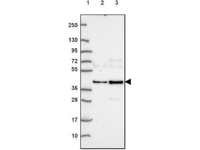Western Blotting (WB) image for anti-ABI2 antibody (Abl-Interactor 2) (ABIN4277305)