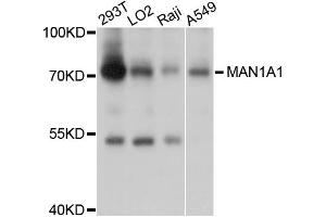 Image no. 1 for anti-Mannosidase, Alpha, Class 1A, Member 1 (MAN1A1) antibody (ABIN4904285)