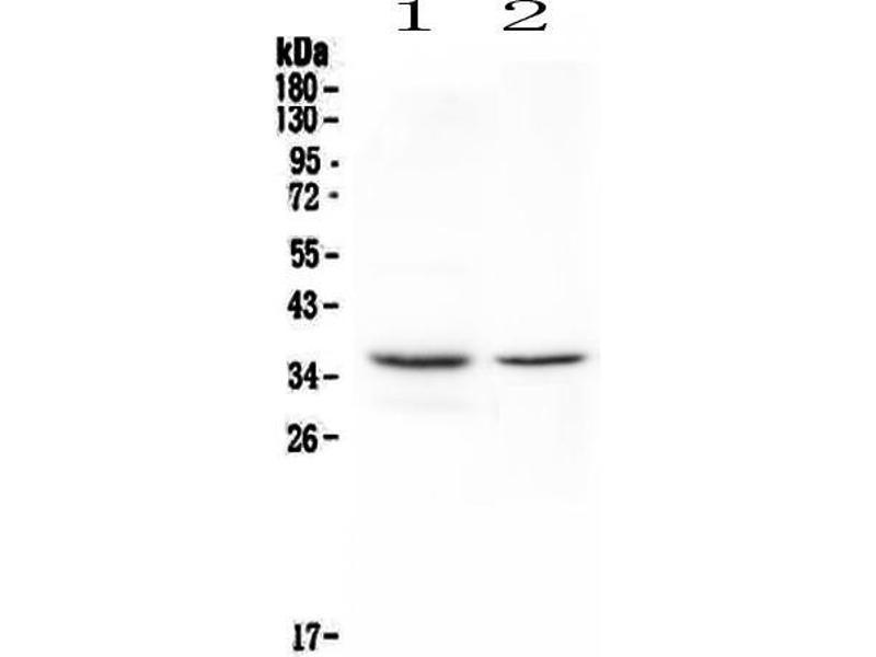Western Blotting (WB) image for anti-CD8a Molecule (CD8A) (AA 28-196) antibody (ABIN5693154)