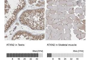 Immunohistochemistry (Paraffin-embedded Sections) (IHC (p)) image for anti-Ataxin 2 (ATXN2) antibody (ABIN4281955)