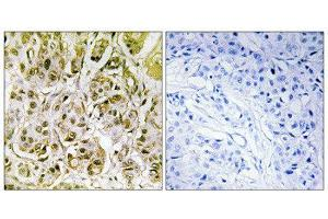 Image no. 1 for anti-SMAD, Mothers Against DPP Homolog 1 (SMAD1) (pSer187) antibody (ABIN1847368)