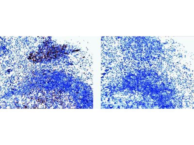 image for anti-Cas-Br-M (Murine) Ecotropic Retroviral Transforming Sequence (CBL) (pTyr774) antibody (ABIN967577)