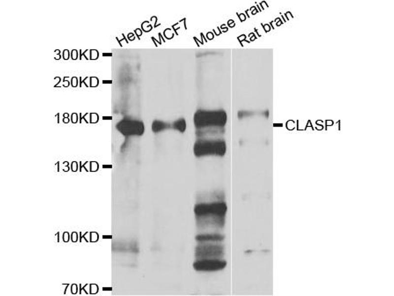 Western Blotting (WB) image for anti-Cytoplasmic Linker Associated Protein 1 (CLASP1) antibody (ABIN6570906)