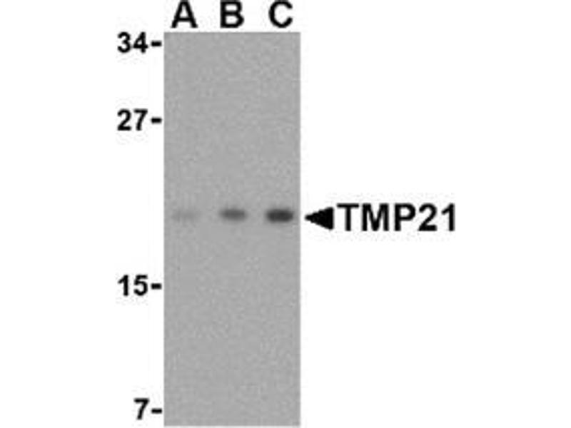 Western Blotting (WB) image for anti-Transmembrane Emp24-Like Trafficking Protein 10 (Yeast) (TMED10) (Center) antibody (ABIN500992)