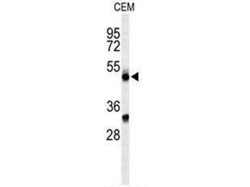 Western Blotting (WB) image for anti-CFP antibody (Complement Factor P) (AA 203-233) (ABIN954312)