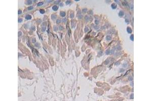 Image no. 2 for anti-Farnesyl Diphosphate Synthase (FDPS) (AA 1-353) antibody (ABIN1867898)