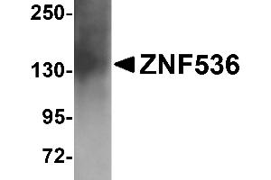 Image no. 2 for anti-Zinc Finger Protein 536 (ZNF536) (N-Term) antibody (ABIN1031687)
