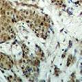 anti-MDS1 and EVI1 Complex Locus (MECOM) antibody