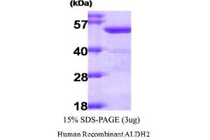 Image no. 1 for Aldehyde Dehydrogenase 2 Family (Mitochondrial) (ALDH2) (Active) protein (ABIN1525864)