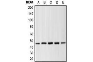 Western Blotting (WB) image for anti-MAP2K1 antibody (Mitogen-Activated Protein Kinase Kinase 1) (pSer286) (ABIN2706544)