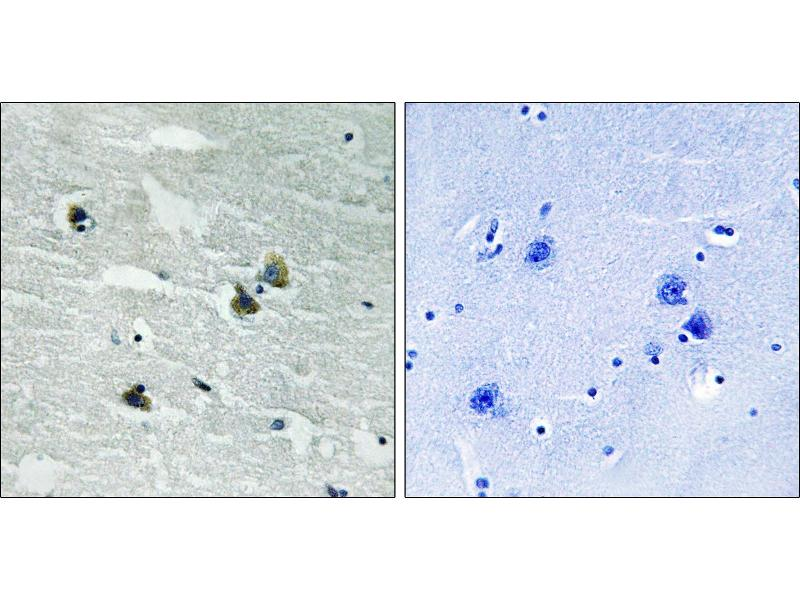 Immunohistochemistry (IHC) image for anti-TYRO3 antibody (TYRO3 Protein Tyrosine Kinase) (pTyr681) (ABIN2500879)