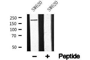 Image no. 1 for anti-Low Density Lipoprotein Receptor-Related Protein 5 (LRP5) antibody (ABIN6268314)