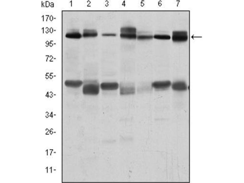 Western Blotting (WB) image for anti-Cas-Br-M (Murine) Ecotropic Retroviral Transforming Sequence (CBL) antibody (ABIN1845278)