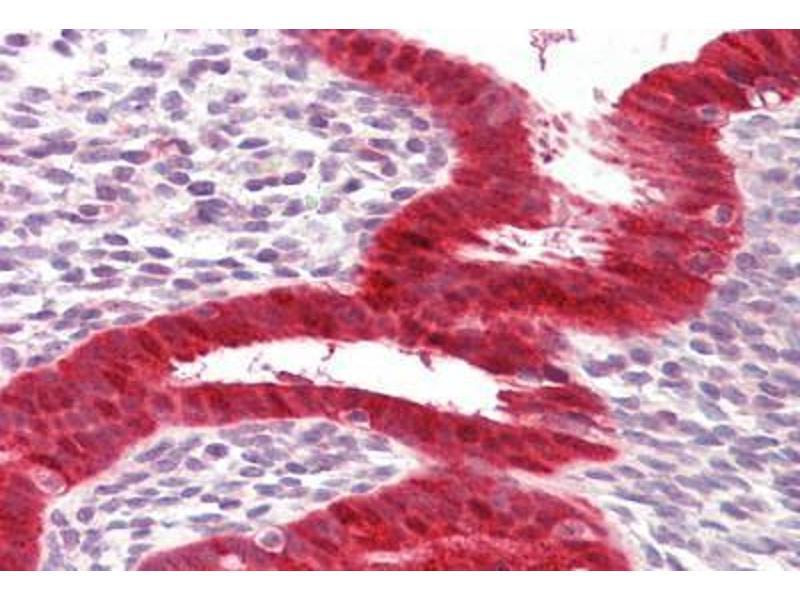 Immunohistochemistry (IHC) image for anti-DEAD (Asp-Glu-Ala-Asp) Box Polypeptide 58 (DDX58) (AA 200-250) antibody (ABIN1101103)