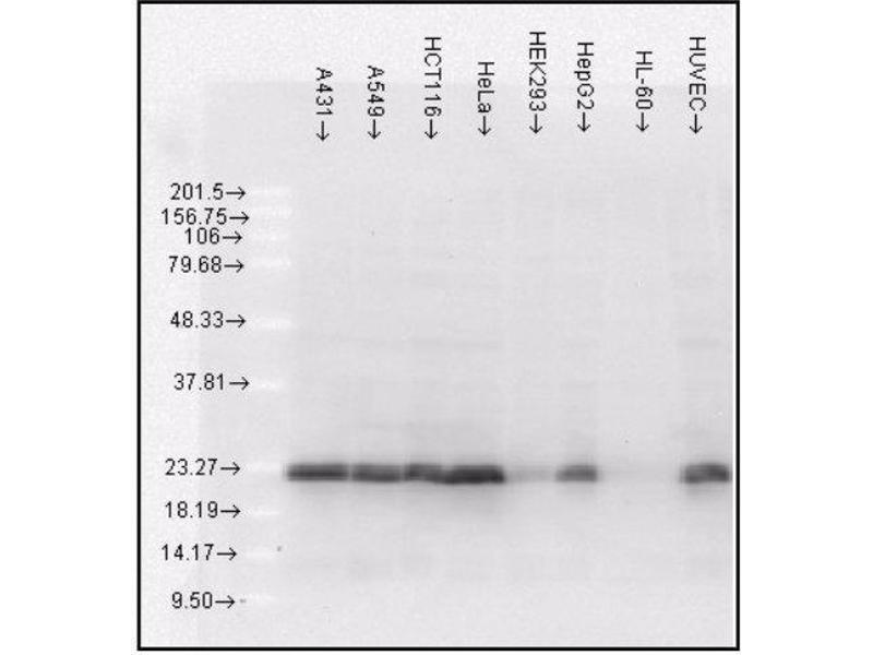 Western Blotting (WB) image for Heat Shock 27kDa Protein 1 (HSPB1) ELISA Kit (ABIN2964829)