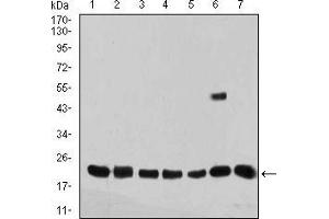 Western Blotting (WB) image for anti-Selenoprotein S (SELS) (AA 1-187) antibody (ABIN5542694)
