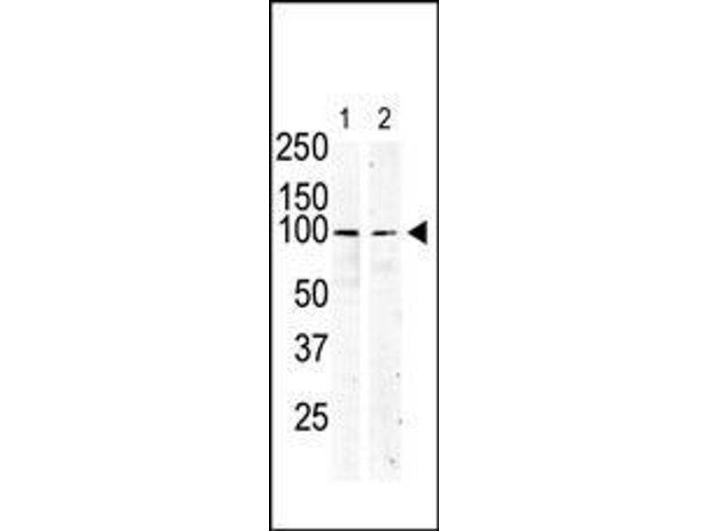 Western Blotting (WB) image for anti-Mast/stem Cell Growth Factor Receptor (KIT) (AA 9-40), (N-Term) antibody (ABIN392008)