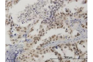 Image no. 4 for anti-High Mobility Group 20B (HMG20B) (AA 1-109) antibody (ABIN564499)