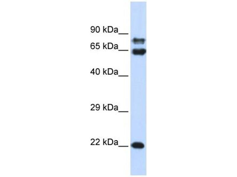 Western Blotting (WB) image for anti-Protein Phosphatase 2, Regulatory Subunit A, alpha (PPP2R1A) (N-Term) antibody (ABIN2774161)