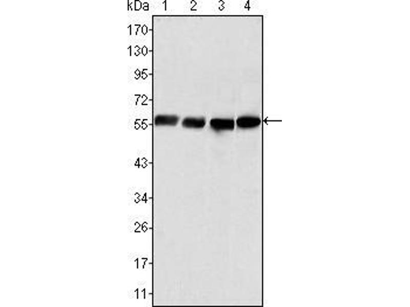Western Blotting (WB) image for anti-Vimentin antibody (VIM) (AA 2-466) (ABIN969454)