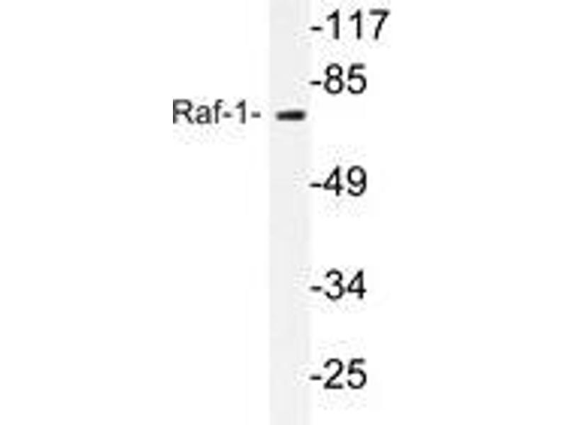 Western Blotting (WB) image for anti-RAF1 antibody (V-Raf-1 Murine Leukemia Viral Oncogene Homolog 1) (ABIN498113)