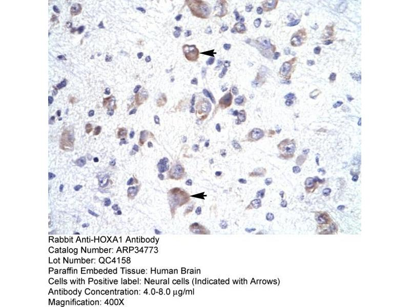 Immunohistochemistry (IHC) image for anti-Homeobox A1 (HOXA1) (Middle Region) antibody (ABIN183082)