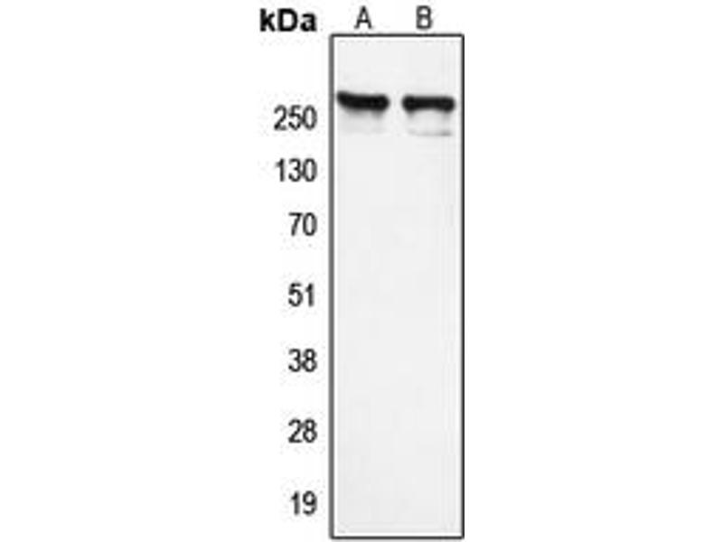 Western Blotting (WB) image for anti-Nuclear Receptor Co-Repressor 1 (NCOR1) (N-Term) antibody (ABIN2707647)