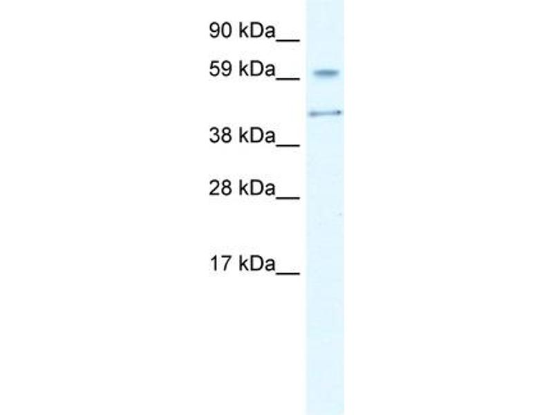 Western Blotting (WB) image for anti-Autoimmune Regulator (AIRE) (N-Term) antibody (ABIN2779777)
