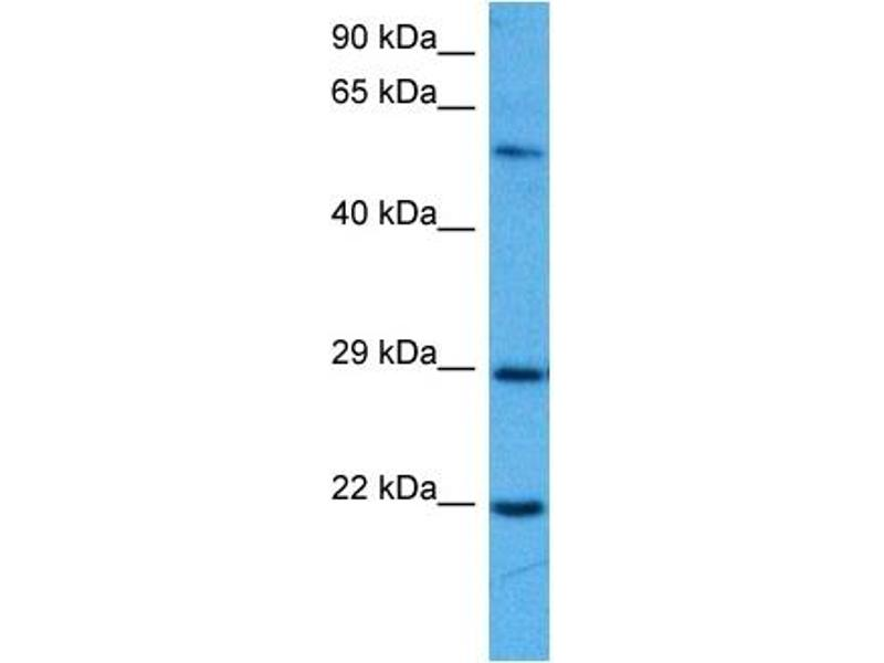 Western Blotting (WB) image for anti-Suppressor of Cytokine Signaling 1 (SOCS1) (N-Term) antibody (ABIN2777164)
