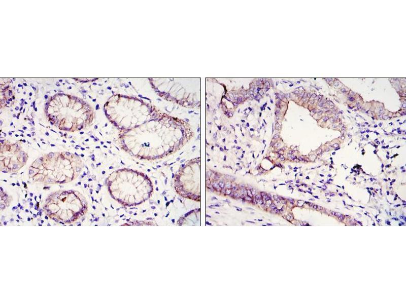 Immunohistochemistry (IHC) image for anti-Cadherin 1, Type 1, E-Cadherin (Epithelial) (CDH1) antibody (ABIN969036)
