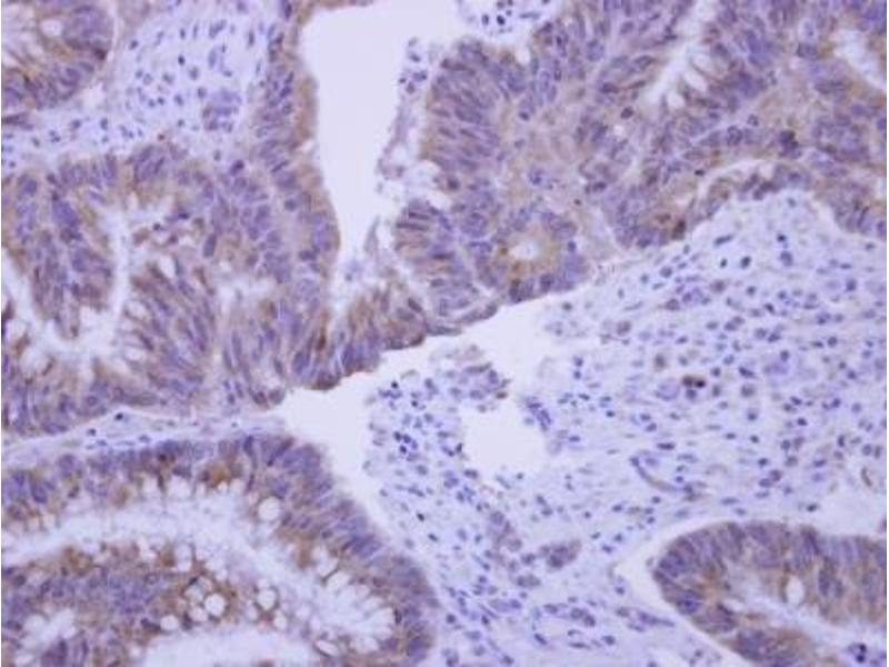 Immunohistochemistry (Paraffin-embedded Sections) (IHC (p)) image for anti-Caspase 8 Antikörper (Caspase 8, Apoptosis-Related Cysteine Peptidase) (Center) (ABIN4288172)