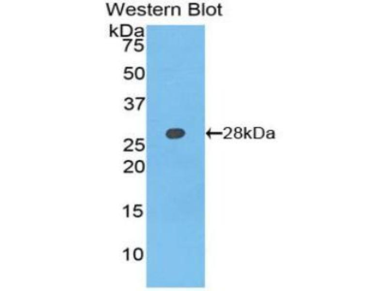 Western Blotting (WB) image for anti-Axin 1 (AXIN1) (AA 618-827) antibody (ABIN5013217)