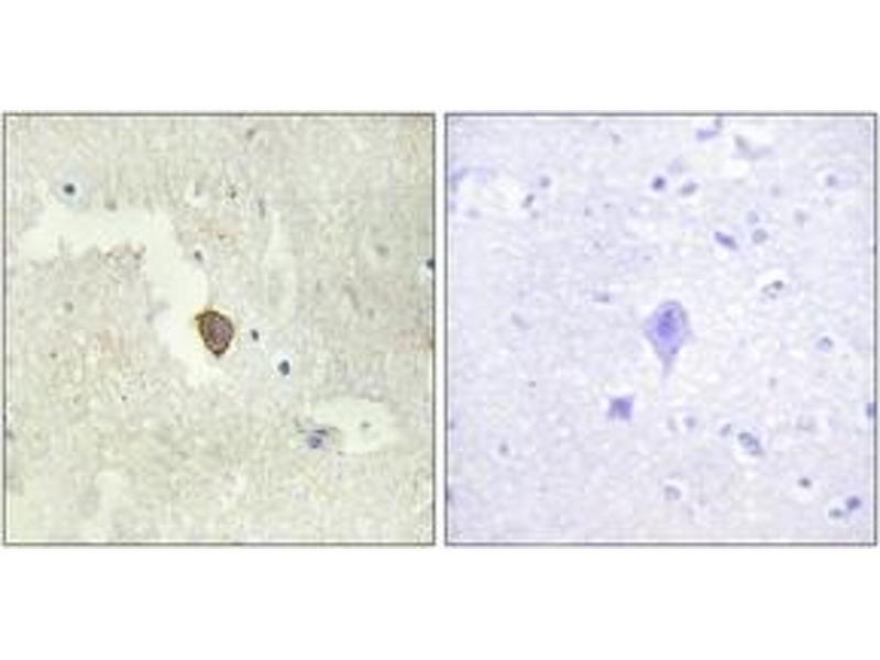 Immunohistochemistry (IHC) image for anti-Adenylate Cyclase 7 (Adcy7) (AA 191-240) antibody (ABIN1534256)