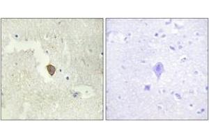 Image no. 1 for anti-Adenylate Cyclase 7 (Adcy7) (AA 191-240) antibody (ABIN1534256)